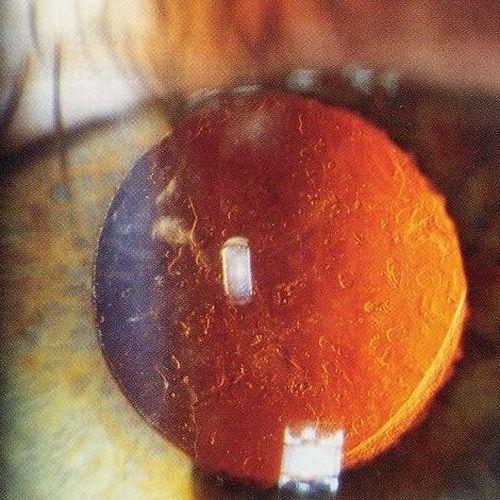 Kapsulotomia, czyli laserowy zabieg usunięcia zaćmy wtórnej