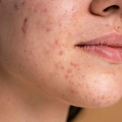 Kobieta z trądzikiem. Zmiany naczyniowe skóry - jak można im zaradzić