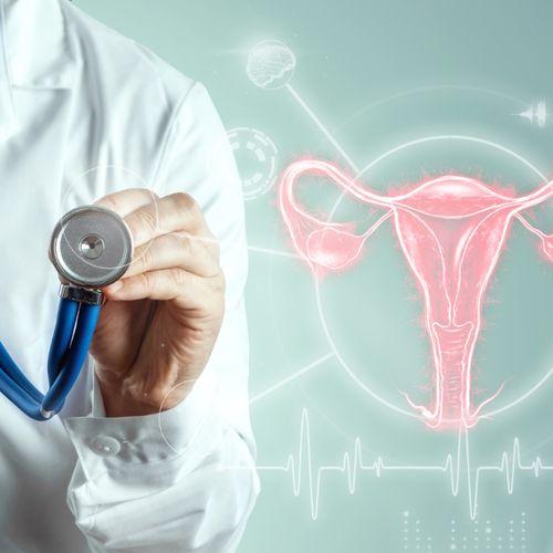 Lekarz ze stetoskopem obok hologram narządów rodnych kobiety. Nowotwory ginekologiczne.