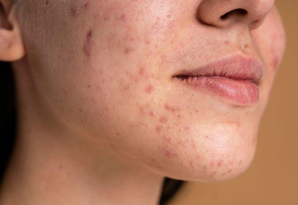 Zmiany naczyniowe skóry – jak można im zaradzić