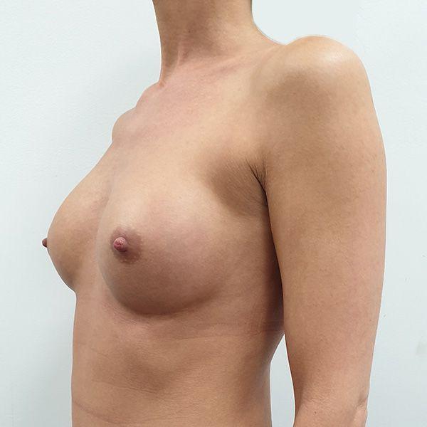 Powiększanie biustu: PO - lewy półprofil