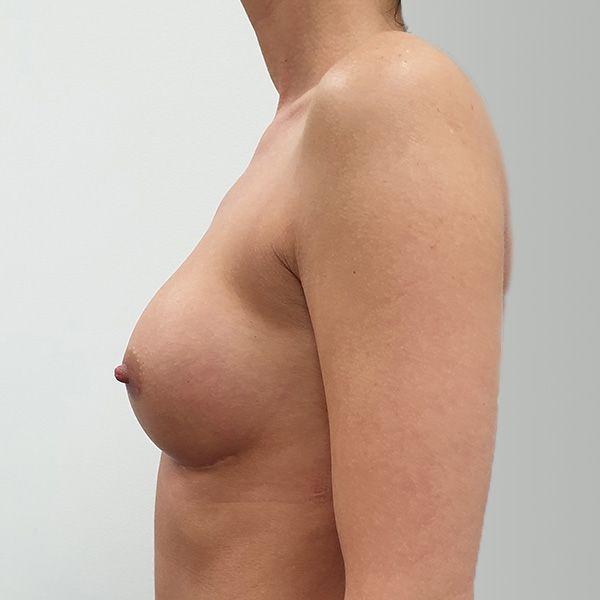 Powiększanie biustu: PO - lewy profil